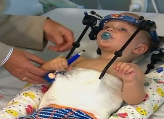 baby head reattached