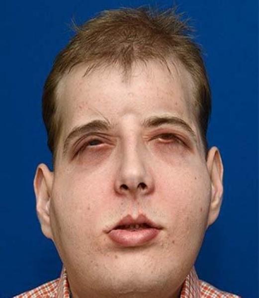 Face Transplant 5