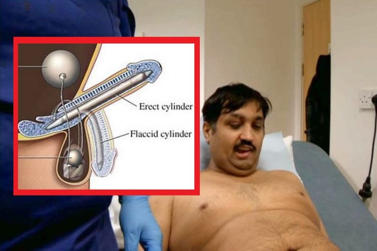 43 Year-Old Scottish Virgin Given The Gift Of a Bionic Penis!