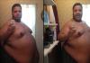 Weight loss thumb