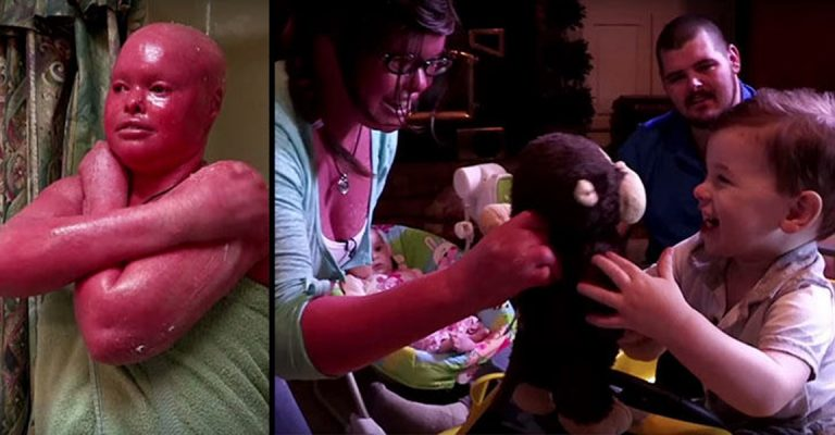 Woman With Rare Skin Condition Is First With Disease To Become A Mom