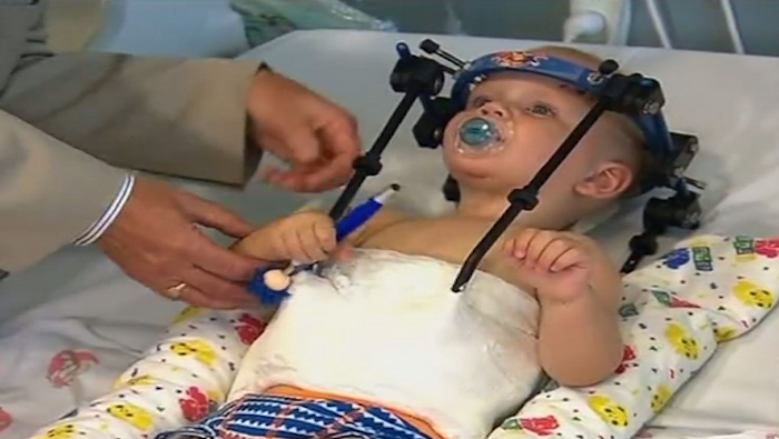 Toddler Has Head Successfully Re-Attached To Body After Near-Deadly Car Accident