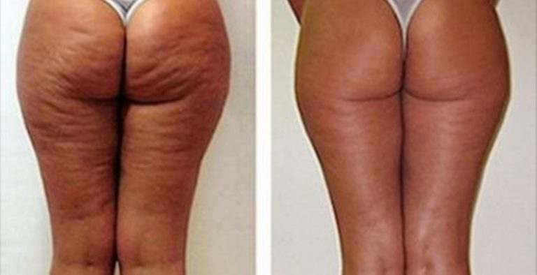 What She Smears On Herself To Fight Cellulite? We All Throw It Away Every Day!