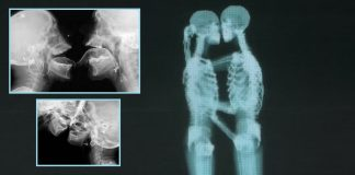 Kissing X Ray