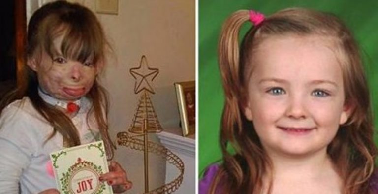 Brave Girl Who Lost Her Entire Family In Vicious Arson Attack Just Wants Cards For Christmas