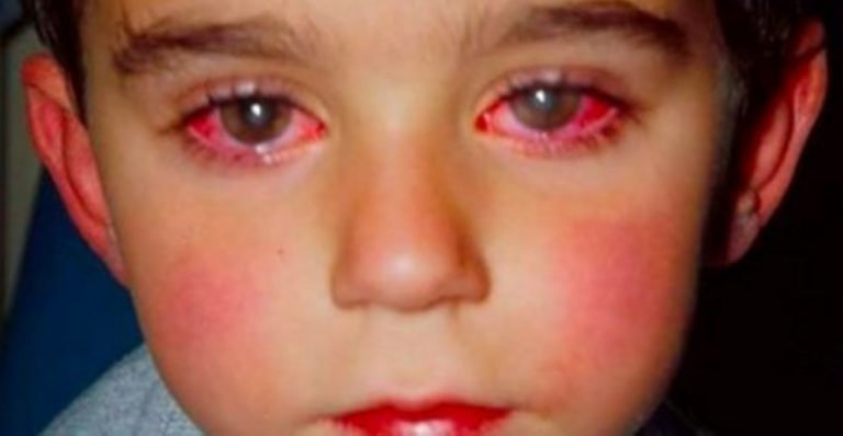 Young Boy Loses 75% of His Sight Because Of This Common Household Toy