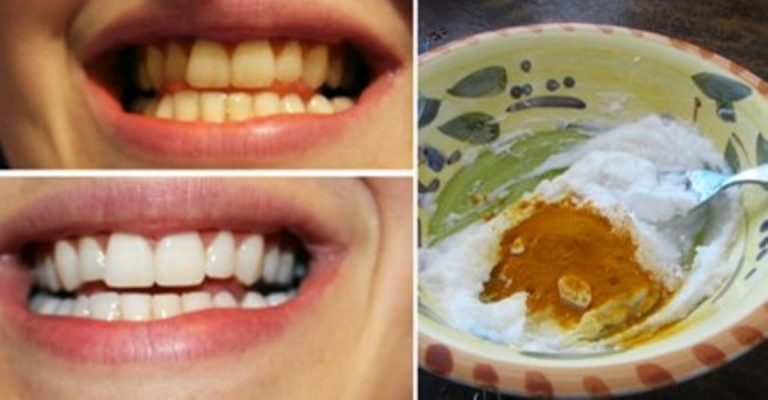 He Mixes Up A Paste Using a Common Ingredient… Next? The Whitest Teeth EVER!