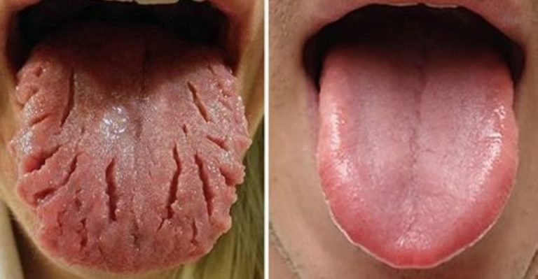 Your Tongue Can Reveal Surprising Things About Your Health