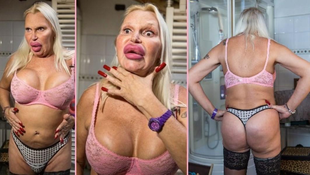 Breast web implant breast augmentation information