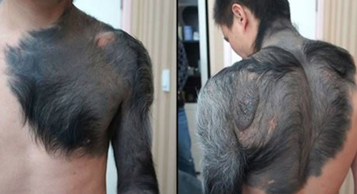 This Man's Rare Condition Makes It Look Like He Is Turning Into A Werewolf
