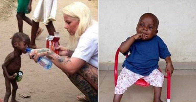 The Incredible Recovery Of The Two Year-Old 'Witch Child' Who Was Left For Dead